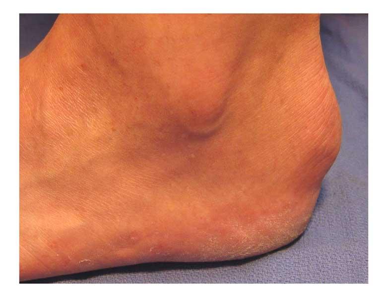 Haglunds Swelling