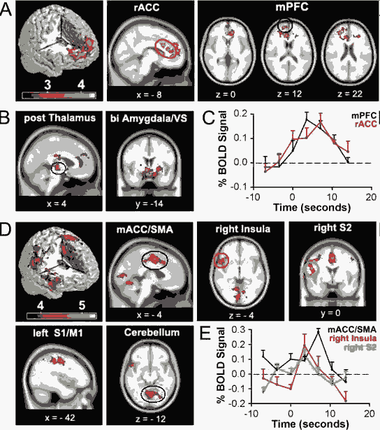 Spontaneous brain activity in chronic low back pain