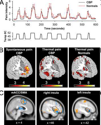Brain activity to thermal stimuli in CLBP