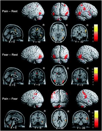 Pain and Fear Brain imaging