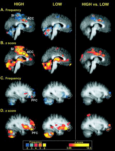 high and low sensitivity brain imaging