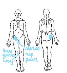body chart femoral artery haematoma