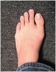 Mortons Toe