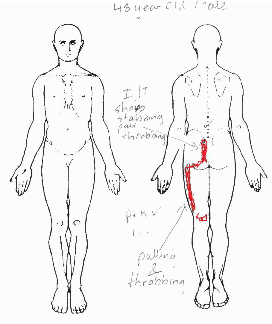 Body Chart SIJ pain