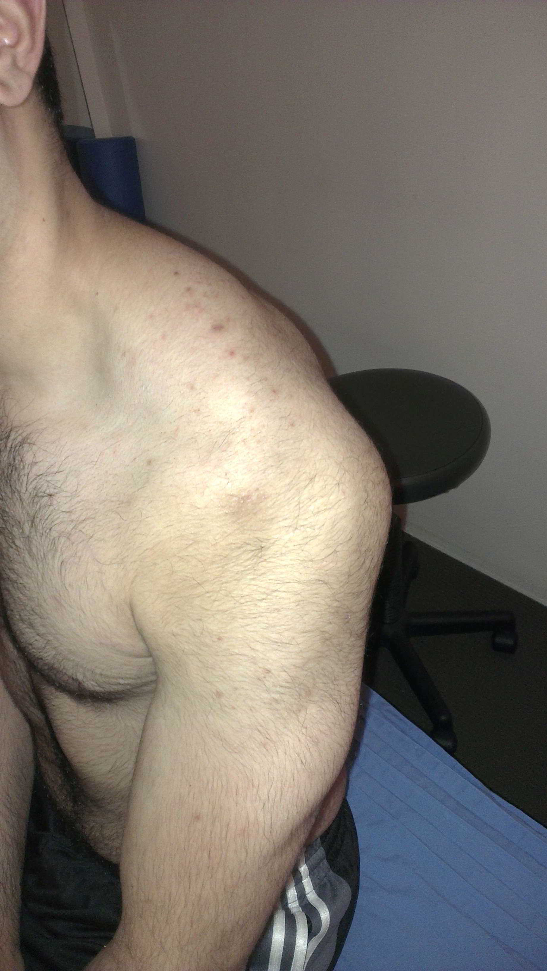 posterior-shoulder-dislocation
