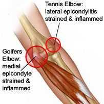 golfer tennis elbow
