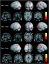 Pain in the Brain - neural plasticity