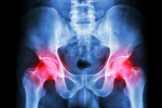 Hip pain in the elderly